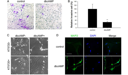 Transcriptional upregulation of microtubule-associated protein 2 is involved in the protein kinase A-induced decrease in the invasiveness of glioma cells