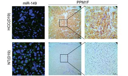 miR-149 represses metastasis of hepatocellular carcinoma by targeting actin-regulatory proteins PPM1F